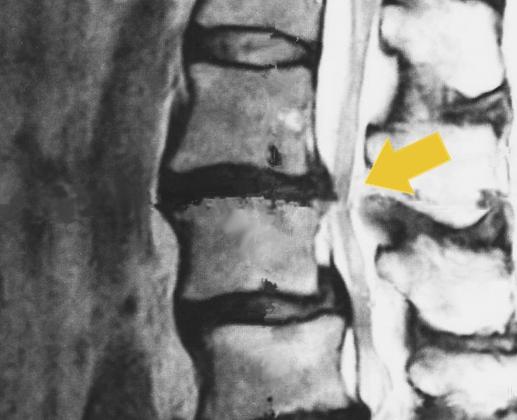 脊柱管狭窄症画像
